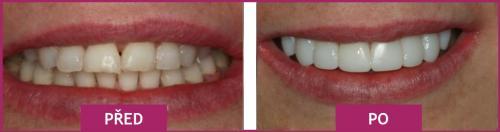 Před a po léčbě